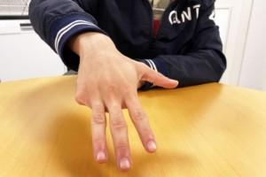 Han lämnade kriminaliteten - med ett finger avklippt