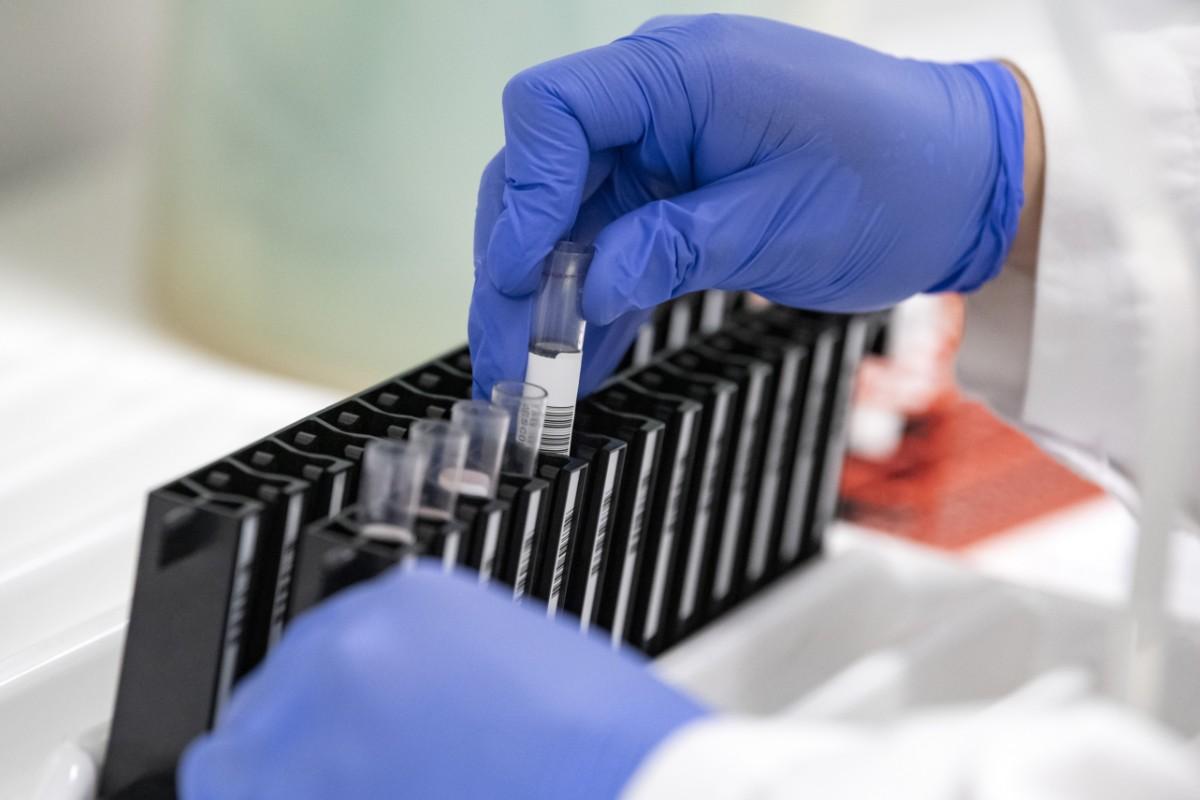 Låg virushalt i avlopp även utan restriktioner